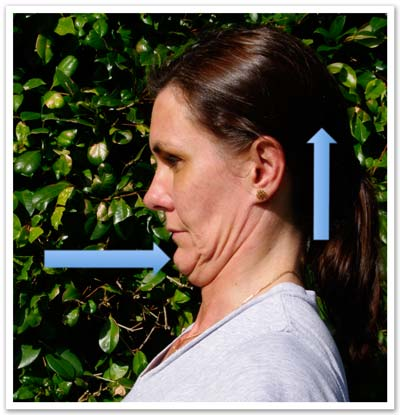 Chin retractions